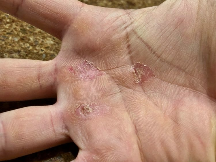 How to Prevent Skin Tears and Hand Calluses during workout